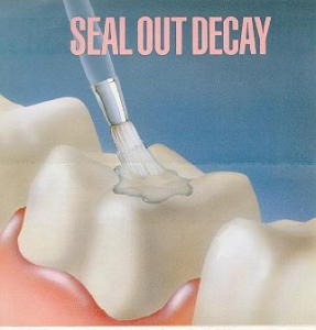 seal out decay