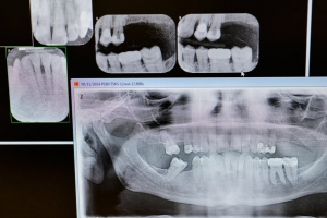dental-x-ray-tmagArticle